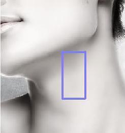 体表触摸颈动脉的部位