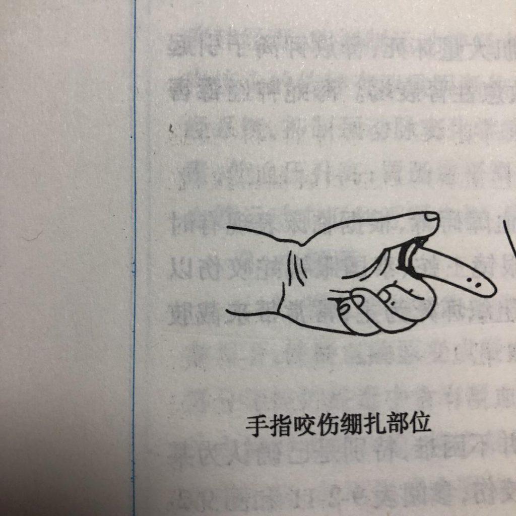 手指咬伤绷扎部位