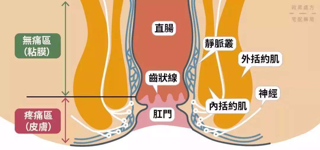 菊部有痔,是个重、大、问题。